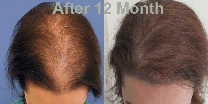 FUE Hair Transplant 1500 grafts for this before after