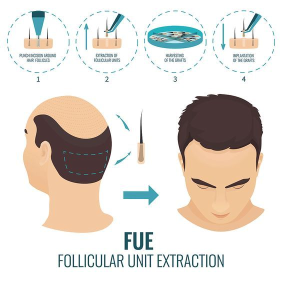 FUE Hair Transplant in Islamabad, Rawalpindi Procedure