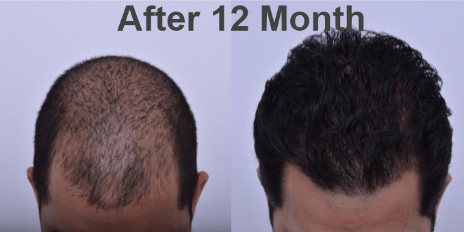 FUE-Hair-Transplant_before_after_pics