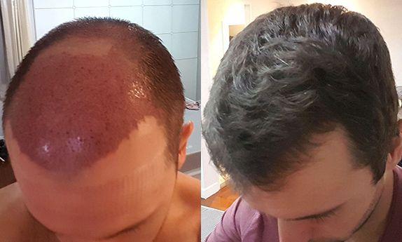 FUT hair transplant B&A