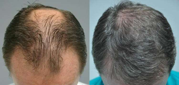 FUT hair transplant in Islamabad