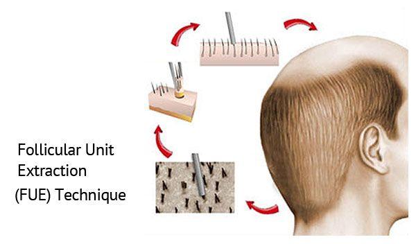 Fue Hair Transplant Dubai Techniques