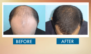 Best Hair Transplant clinic in Islamabad Rawalpindi
