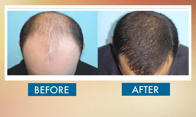 Hair Transplant clinic in dubai and abu dhabi