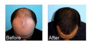 Hair-Transplant-in-Islamabad-Rawalpindi1