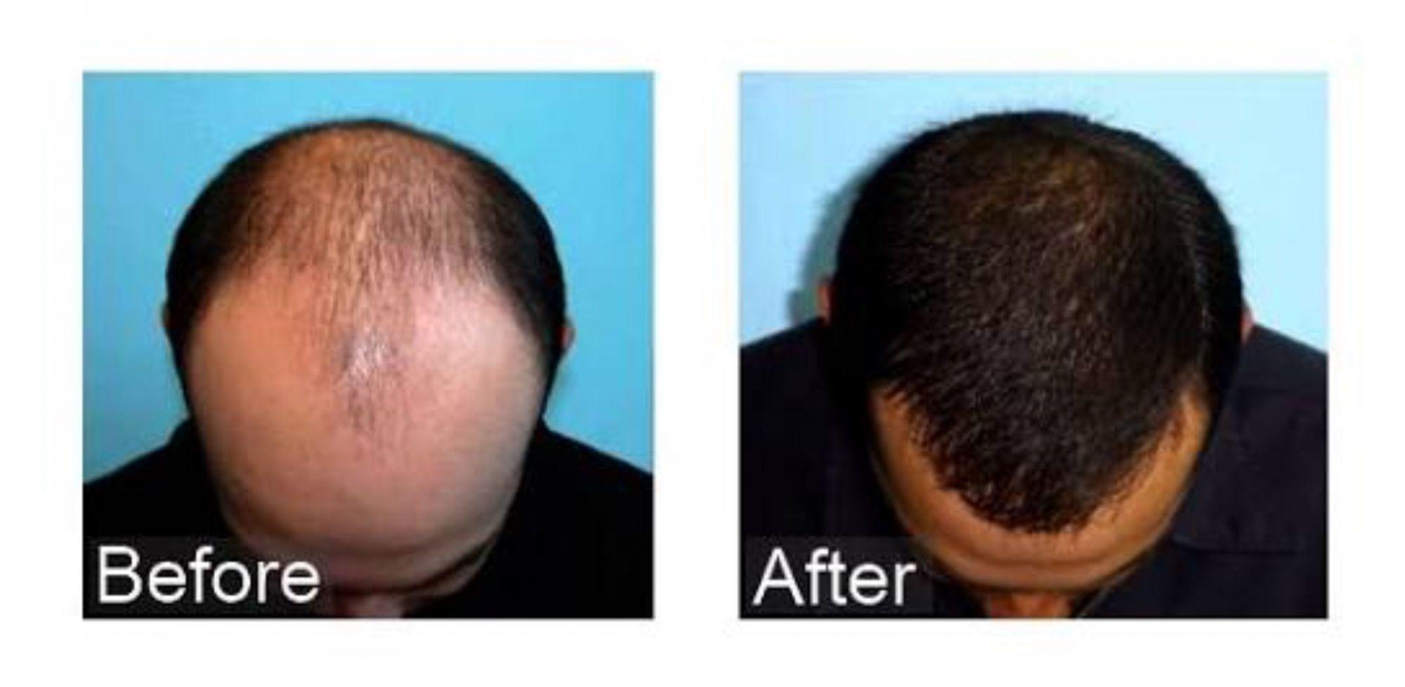Hair Transplant in dubai and abu dhabi