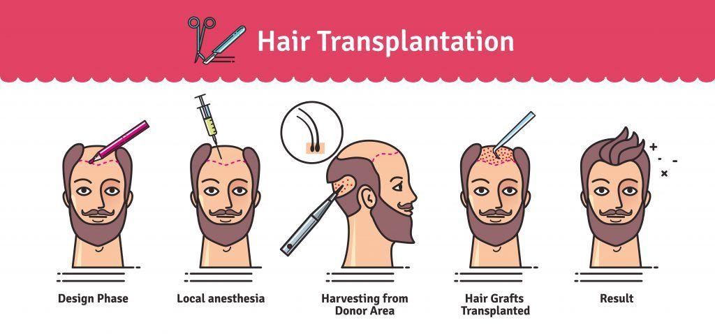 Procedure-of-Stem-Cell-Transplant-Islamabad, Pakistan