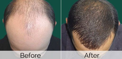 Stem Cell Hair Transplant Before and After
