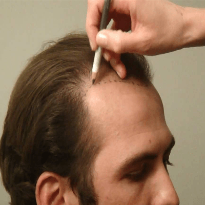Stem Cell Hair Transplant