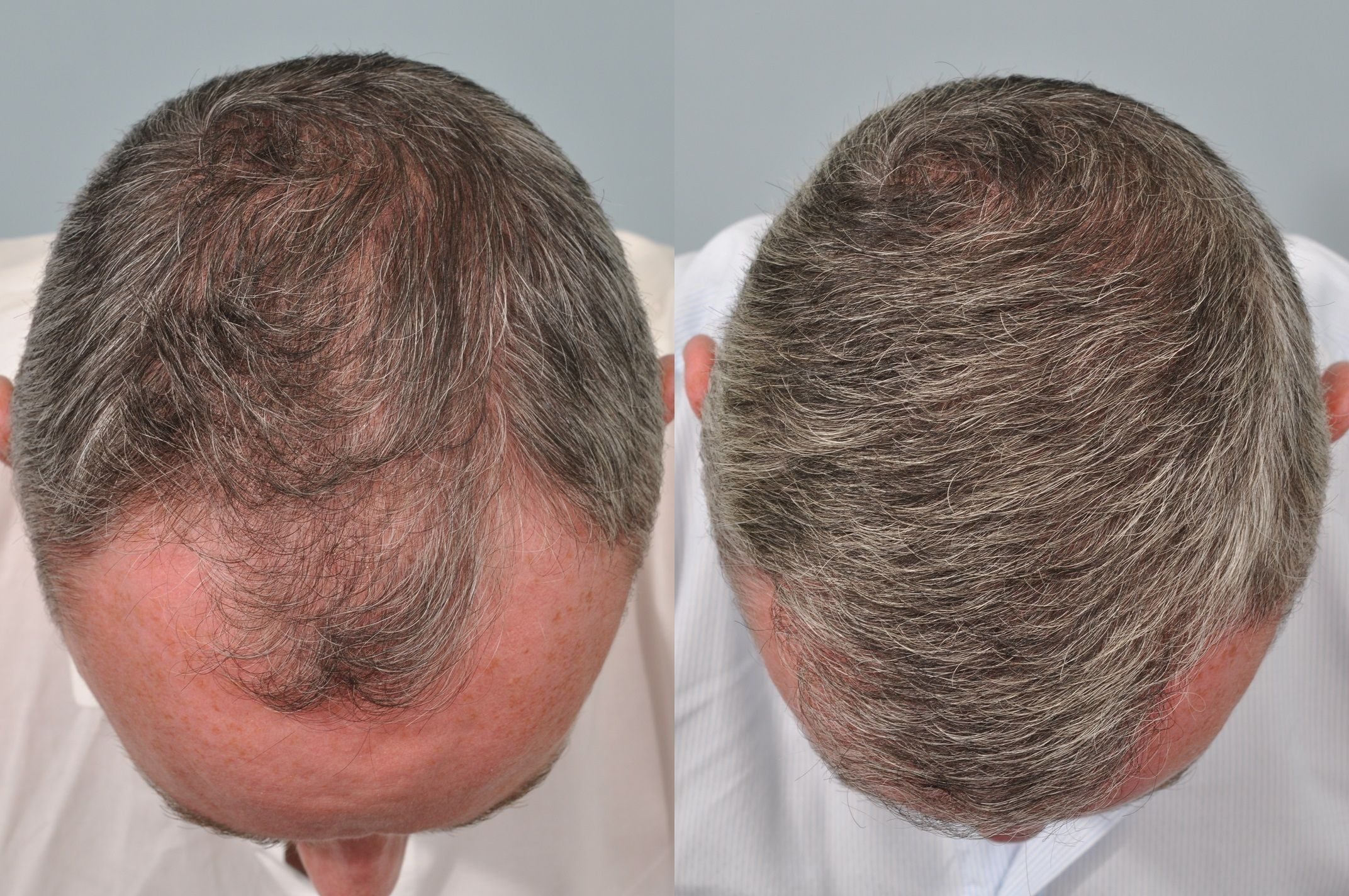 hair-transplant-Islamabad-Before and after results