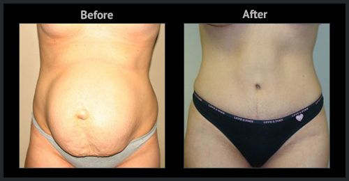 Liposuction Treatment in Dubai & Abu Dhabi