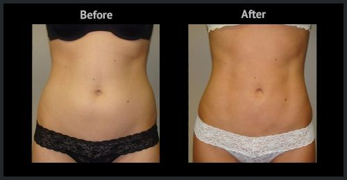 Liposuction Treatment in Dubai Before and After