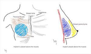 Breast Augmentation in Islamabad & Rawalpindi