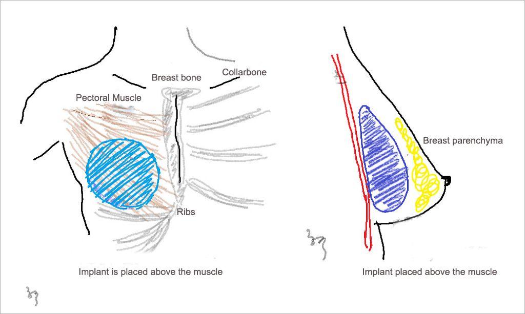 Breast Augmentation in Rawalpindi, Islamabad