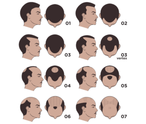 Hair-Transplant-in-Rawalpindi