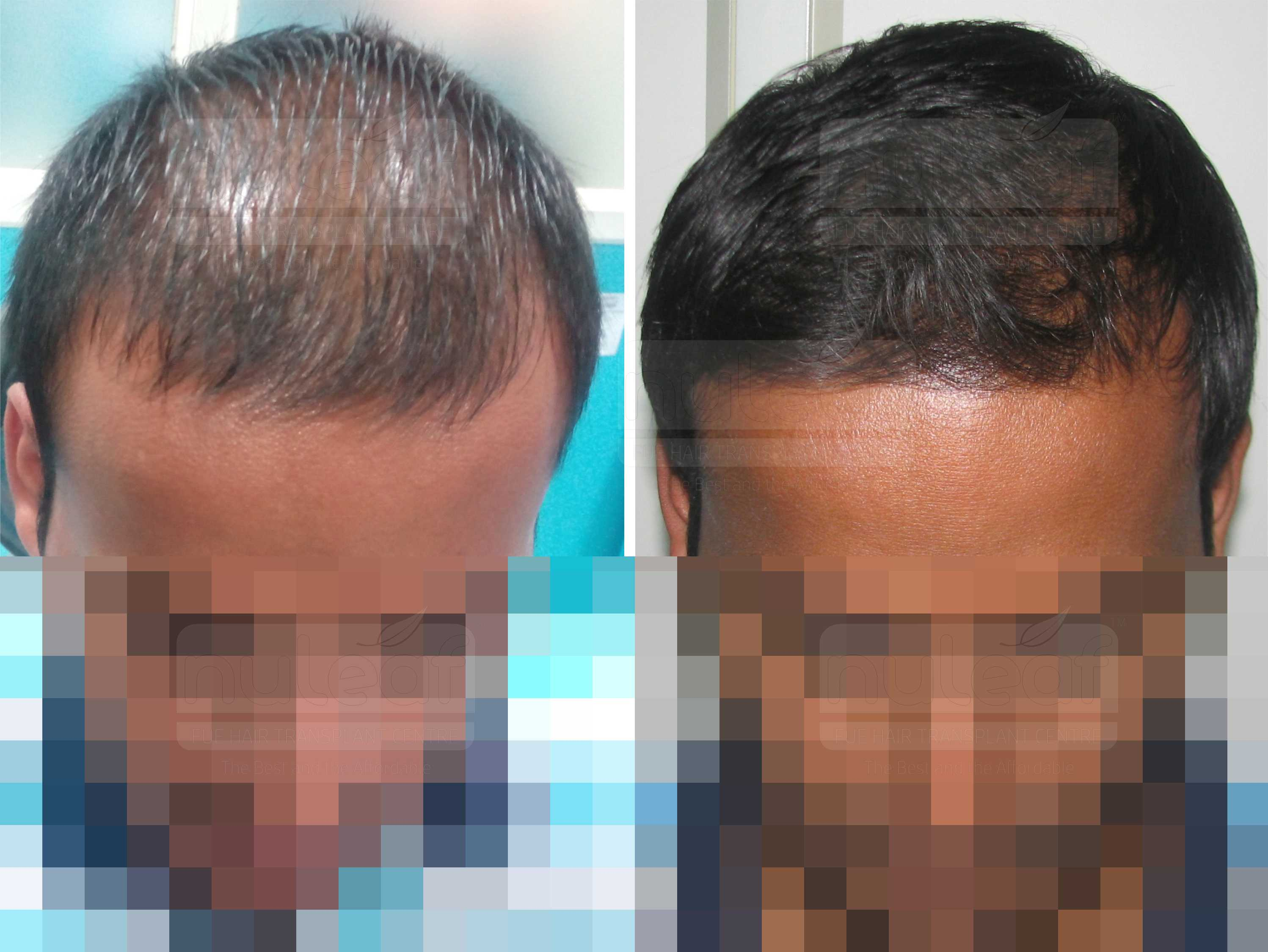 Acell Hair Loss therapy in Dubai