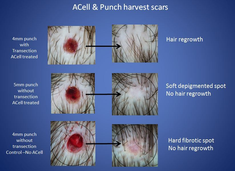 Acell Therapy Scar Removal
