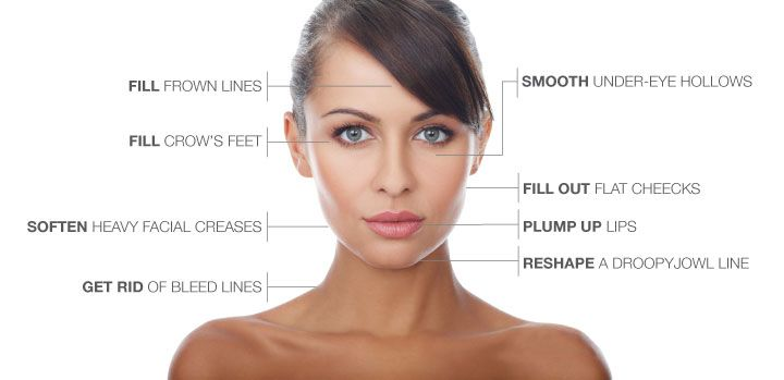 Botox injections in islamabad & Rawalpindi