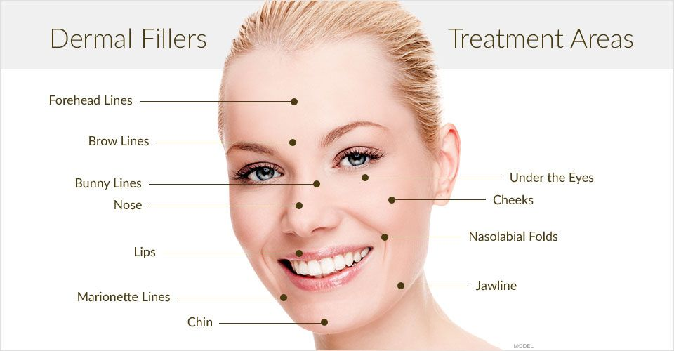 Dermal Fillers Injections Skn Cosmetics