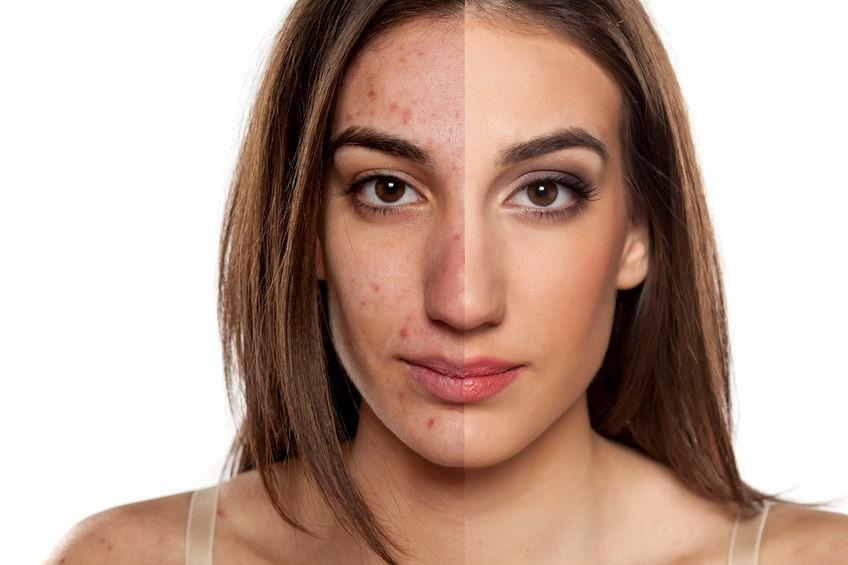 Acne Scar Treatment in Islamabad Rawalpindi