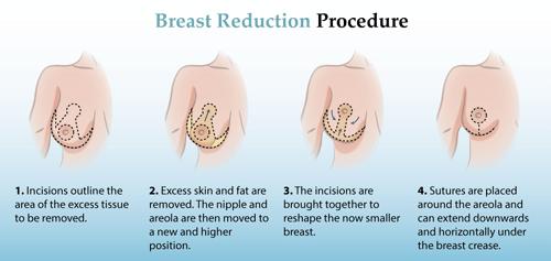 Breast Reduction Dubai & Abu Dhabi Procedure