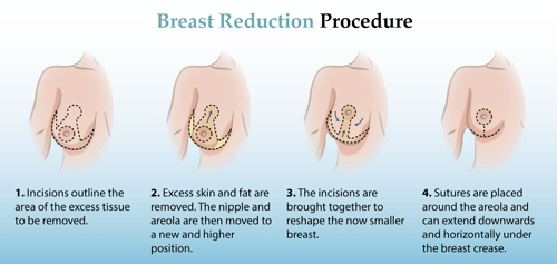 Breast Reduction Procedure Islamabad, Rawalpindi