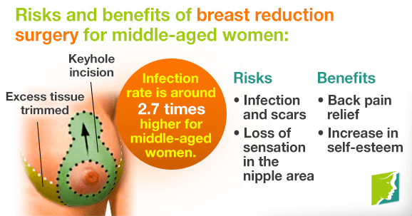 Breast Reduction Surgery Dubai Benefits & Results