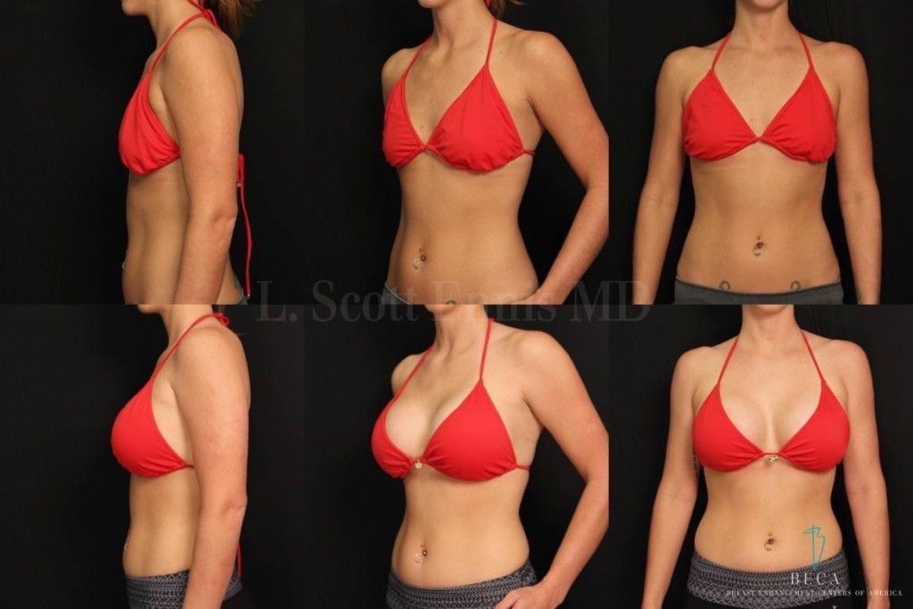 Breast implants Dubai & Abu Dhabi Before and After