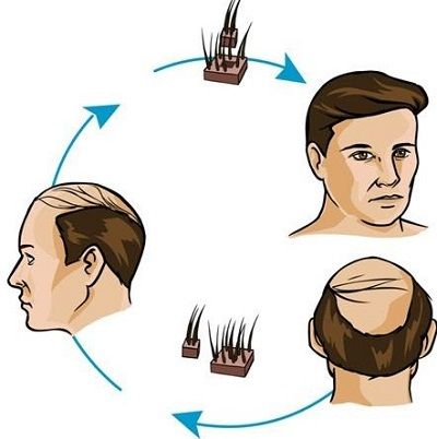 Advantages of FUE and FUT Hair Transplant