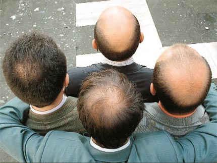 ACell PRP Hair Restoration Treatment in Dubai, Abu Dhabi & Sharjah