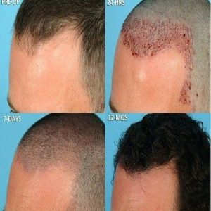 Nano Graft Hair Transplant Surgery Islamabad