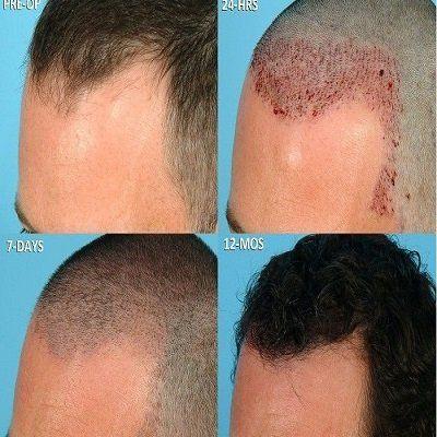 Nano Graft Hair Transplant Surgery Islamabad