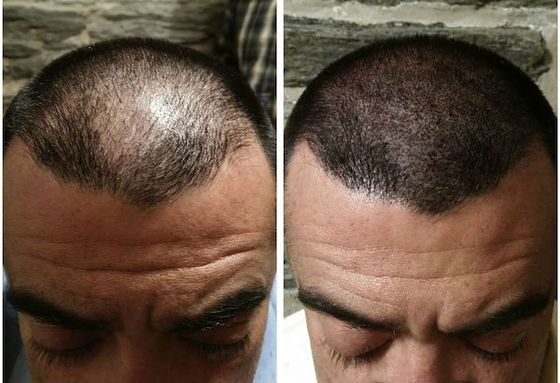Scalp Micropigmentation in Islamabad and Rawalpindi