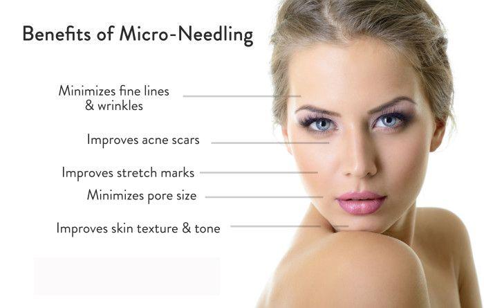 Microneedling Treatment in Islamabad, Rawalpindi and Pakistan