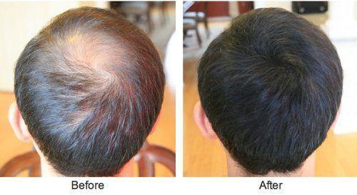 Alopecia Areata Treatment Islamabad