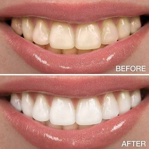 Teeth Whitening in Islamabad Before and After