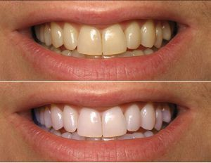 Teeth Whitening in Islamabad, Rawalpindi Before and After.