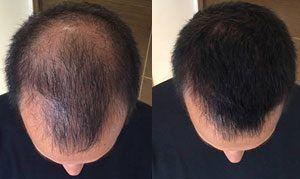 PRP Hair Treatment Islamabad