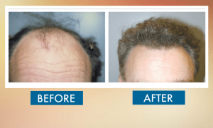 Best Hair Transplant Clinic in Islamabad