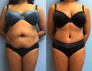 Best Liposuction in Islamabad & Rawalpindi