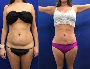 Best Liposuction in Islamabad & Rawalpindi, Pakistan