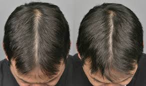 Best PRP Hair Loss Treatment in Islamabad & Rawalpindi