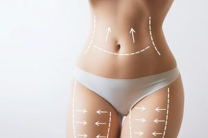 Body Contouring Treatment in Islamabad & Pakistan