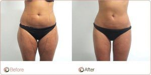 Body Contouring in Islamabad, Pakistan