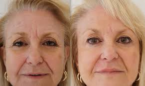 Botox Injection for Wrinkles Islamabad Rawalpindi & Pakistan