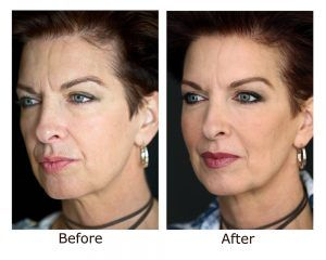 Botox Injection for Wrinkles in Islamabad & Pakistan