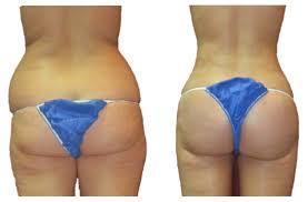 Brazilian Butt Lift in Rawalpindi