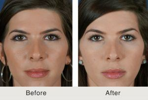 Brow Lift Treatment in Islamabad & Rawalpindi, Pakistan