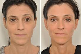 Brow Lift Treatment in Islamabad & Rawalpindi
