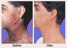 Burn Reconstructive Surgery in Islamabad, Rawalpindi & Pakistan